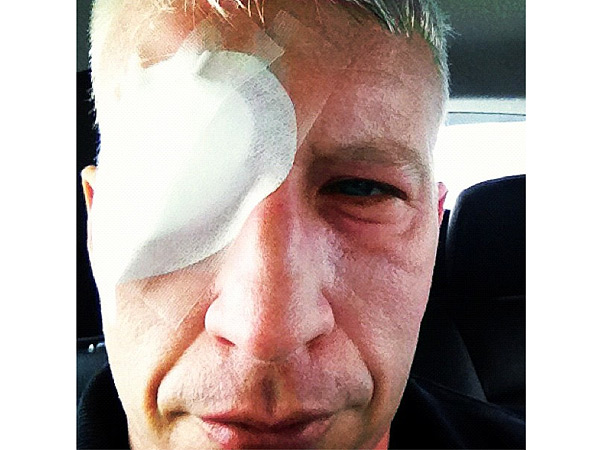 Anderson Cooper Visits Hospital For Sunburned Eyelids
